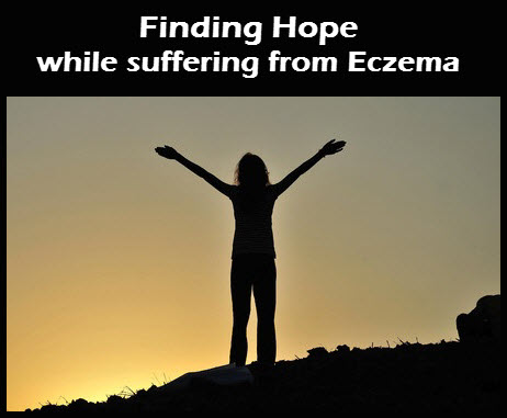 Finding_Hope_With_Eczema