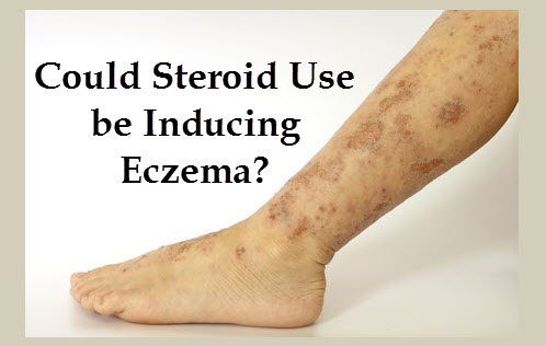 Eczema is term for a group of medical conditions that cause the skin to become inflamed or irritated WebMD explains its causes symptoms treatment and