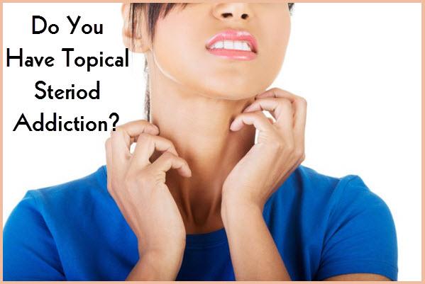 Skin_Disorder_Treatment_Eczema_Topical_Steriod_Addiction