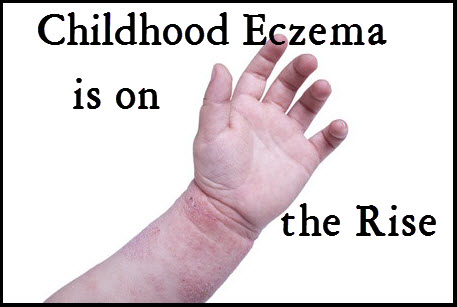 Skin_Disorders_Childhood_Eczema_is_on_the_rise_Eczemate