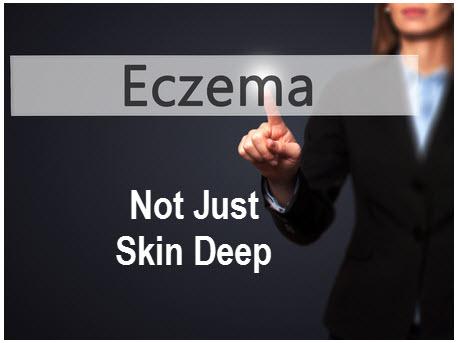 Eczema_Not_Just_Skin_Deep_EczeMate